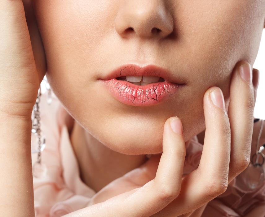 5 Ways to Kiss Goodbye Dry & Cracked Lips - School Mum